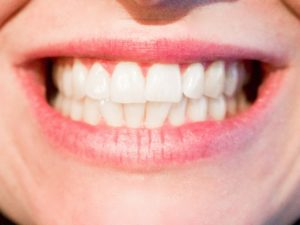 lån til tandbehandling